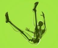 Падение человеческого тела увиденного на рентгеновских снимках Стоковая Фотография RF