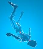 Падения человека увиденные на рентгеновских снимках Стоковое фото RF