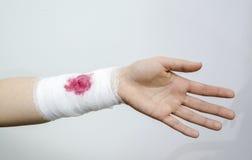 Перевязанная рана Стоковые Фото