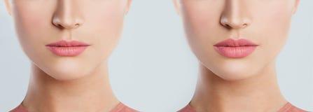 Перед и после женскими впрысками заполнителя губы заполнители Стоковые Фотографии RF
