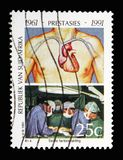 Пересадка сердца, serie достижений, около 1991 Стоковая Фотография
