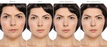 Перед и после концепцией косметологии анти--времени стоковые фотографии rf