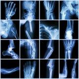 Перелом кости многократной цепи рентгеновского снимка собрания Стоковое Изображение