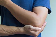 Перелом кости локтя Стоковые Изображения RF