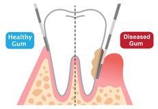Периодонтальная зондируя глубина показывая здоровую и больную камедь Концепция зубоврачебных и здравоохранения иллюстрация вектора