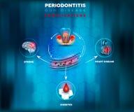 Плакат усложнений Periodontitis бесплатная иллюстрация