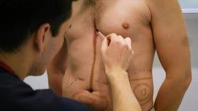 Пластический хирург рисует разметку для деятельности липосакции и liposculpture Пациент человек, красота ` s человека сток-видео