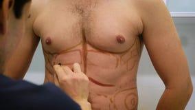 Пластический хирург рисует разметку для деятельности липосакции и liposculpture Пациент человек, красота ` s человека видеоматериал