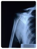 плечо x луча Стоковое Фото