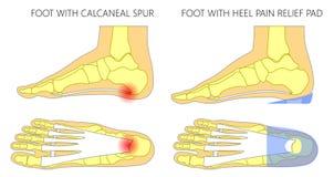 Плоская нога с протезной пусковой площадкой облегчения боли insole_Heel иллюстрация штока