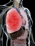 Пневмония иллюстрация вектора
