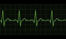 побейте сердце cardiogram Сердечный цикл Стоковая Фотография