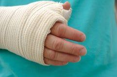 поврежденная рука рукоятки Стоковое фото RF
