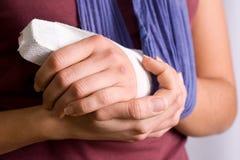 поврежденная рука Стоковые Изображения