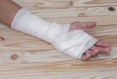 Повязка марли контузия руки обрабатывать пациентов с рукой стоковое изображение