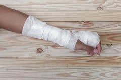 Повязка марли рана руки обрабатывать пациентов с рукой стоковая фотография