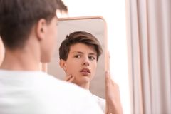 Подросток при проблема угорь смотря в зеркале стоковая фотография rf