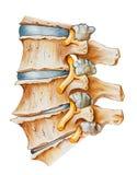 Позвоночник - поясничный артрит Osteoarthritic и Spondylitic стоковое фото