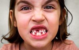 Портрет молока беззубой девушки ребенка отсутствующего и перманентности teet Стоковое Фото