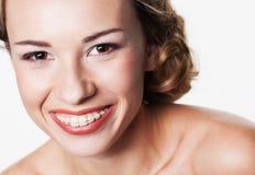 Усмешка с зубоврачебными расчалками стоковое изображение