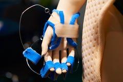 Послеоперационные повязки для руки на манекенах Стоковые Изображения
