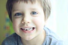 потерянный зуб Стоковое Фото
