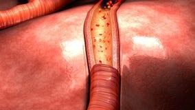 Поток крови в сосудах стоковые изображения