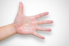 Пот руки синдрома гипергидроза Стоковая Фотография