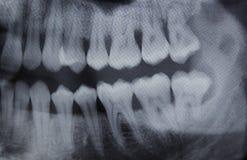 Половина зубоврачебного рентгеновского снимка правая Стоковые Фотографии RF