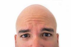Половинная сторона облыселого человека в белой предпосылке Стоковые Фото