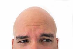 Половинная сторона облыселого человека в белой предпосылке Стоковые Изображения