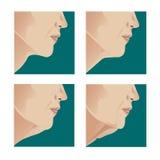 Подъем шеи Стоковые Изображения RF