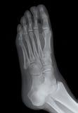 правильная позиция луча ноги x Стоковая Фотография RF
