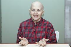 Правильное питание после химиотерапии Облыселая женщина на таблице есть брокколи, плодоовощ Стоковая Фотография RF
