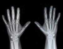 право x луча руки левое Стоковые Изображения RF