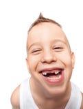Прелестная беззубая улыбка стоковые фото