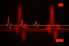 Предпосылка диаграммы тарифа сердца отказа Стоковое Фото