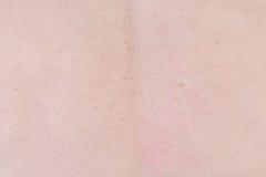 Предпосылка человеческой кожи Стоковая Фотография RF