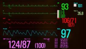 Предсердные флаттер и показатели жизненно важных функций Стоковое Изображение RF