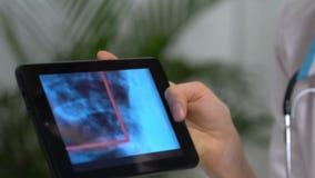 Привлекательный врач показывает к женскому пациенту изображение рентгеновского снимка на таблетке видеоматериал