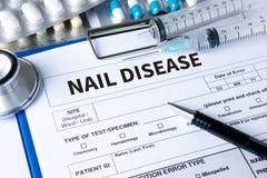 ПРИГВОЗДИТЕ инфекцию ЗАБОЛЕВАНИЕМ грибную на ногтях руке, пальце с onycho Стоковые Изображения RF