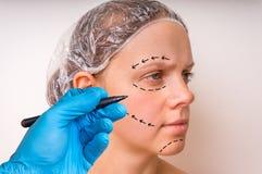 Притяжка доктора пластической хирургии выравнивается с отметкой на терпеливой стороне стоковые изображения rf