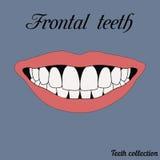 Прифронтовые зубы иллюстрация вектора