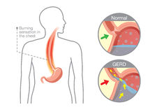 Причина заболевания gastroesophageal рефлюкса в человеческом животе Стоковые Изображения RF