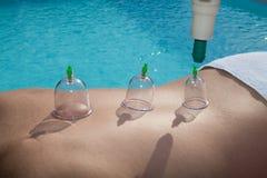 Придавая форму чашки терапия, курорт, доктор женщины извлекает чашки от patient& x27; задняя часть s Стоковое Изображение