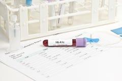 Проба крови лаборатории A1c Стоковое фото RF
