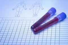 Пробирка крови с пробой крови Стоковые Фото