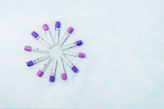 Пробирки для диагноза лаборатории, для анализов крови Стоковое фото RF