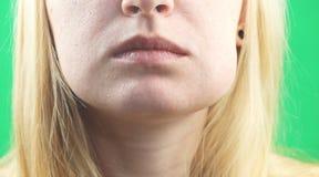 Проблема зубов Gumboil, поток и опухать щеки Крупный план красивой унылой девушки страдая от сильной боли зуба привлекательностей стоковые фотографии rf