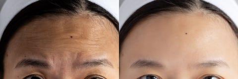 Проблема морщинок лба изображения сравнили влияние перед и после обработкой для проблемы кожи морщинок лба в женщине стоковое изображение